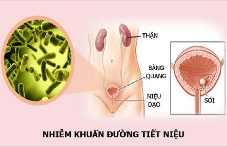 Địa chỉ phòng khám chữa viêm đường tiết niệu uy tín ở Nam Định