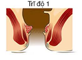 Bệnh trĩ độ 1, nguyên nhân, hình ảnh và cách điều trị bệnh